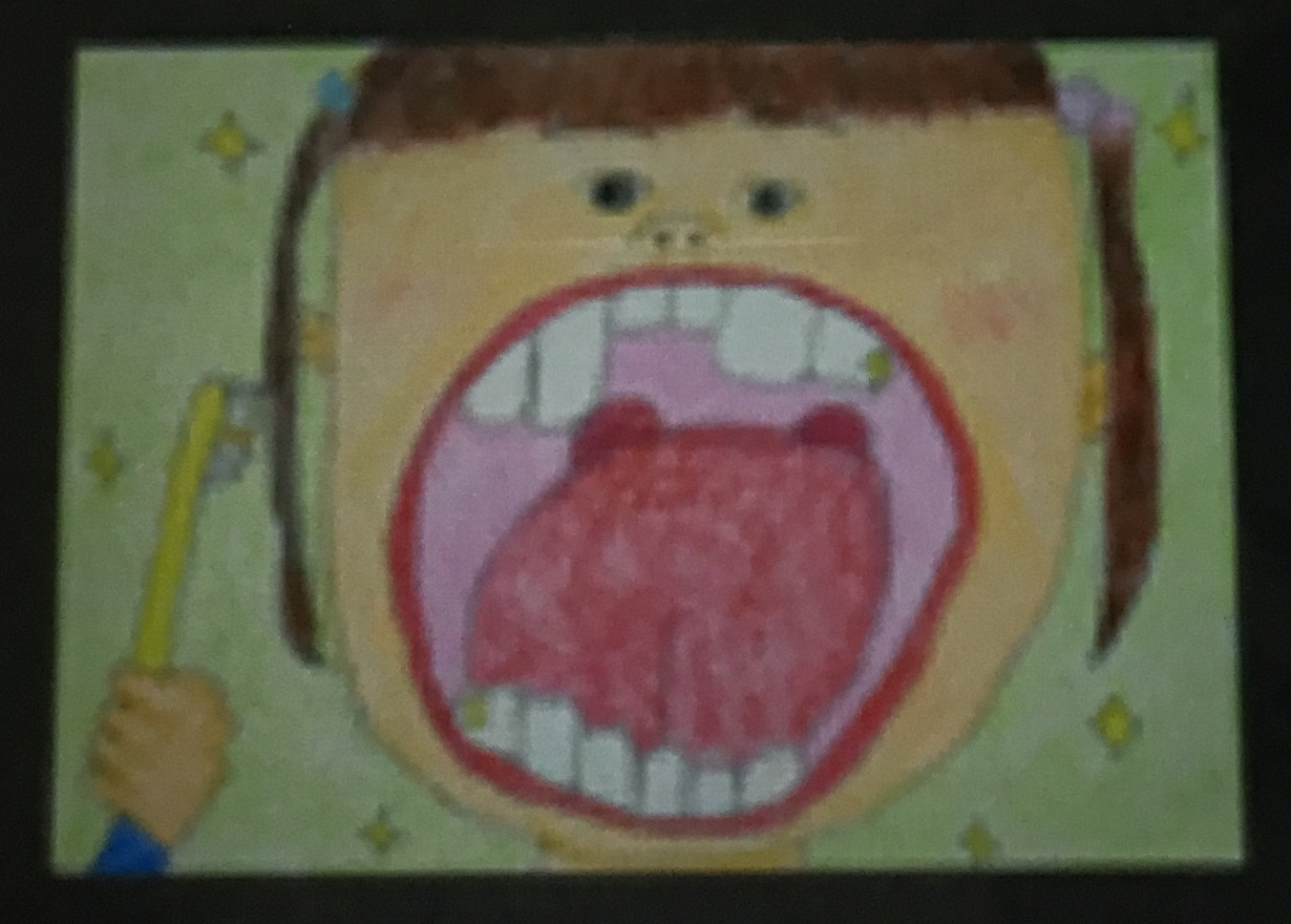 がんと口腔清掃   4