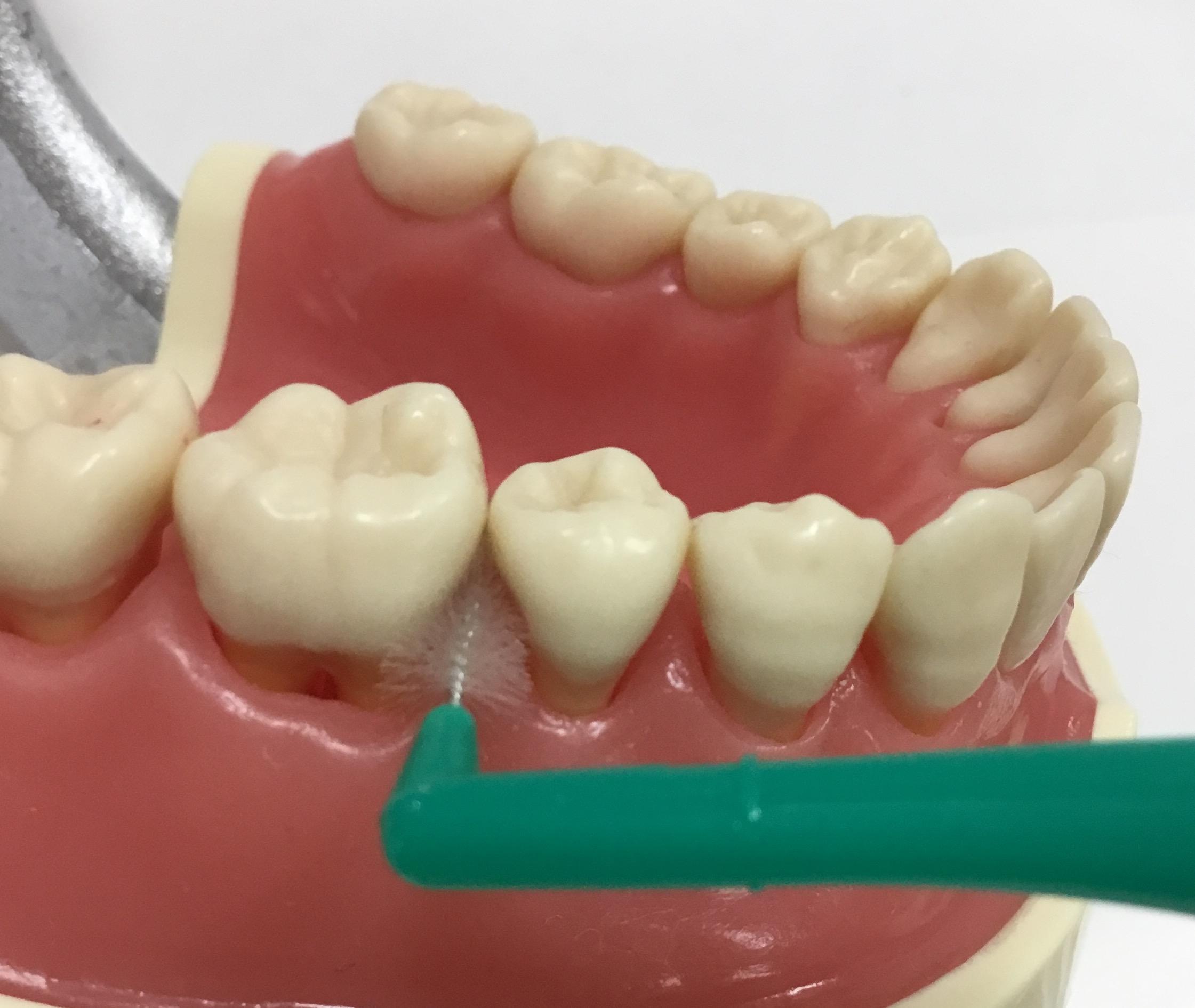 歯ブラシだけでは7割程度しか落ちません