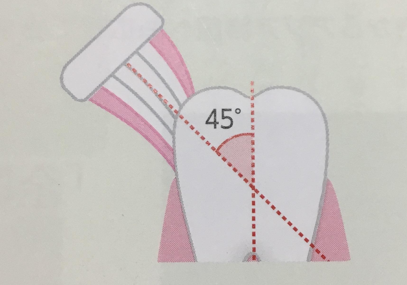 歯ブラシは45度に当てる
