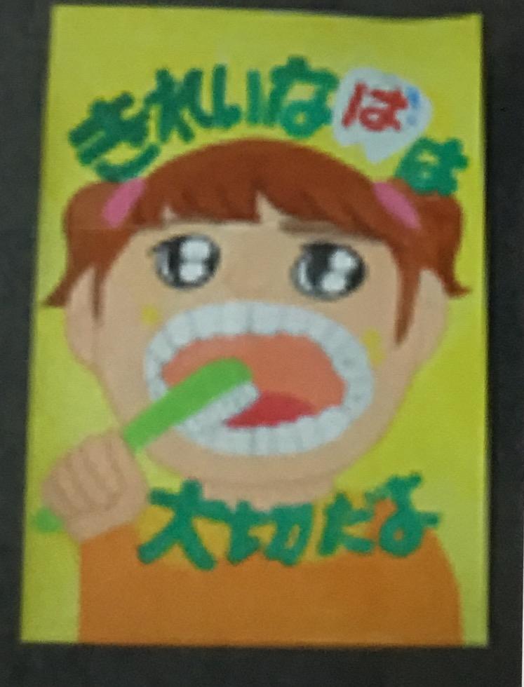 がんと口腔清掃  5