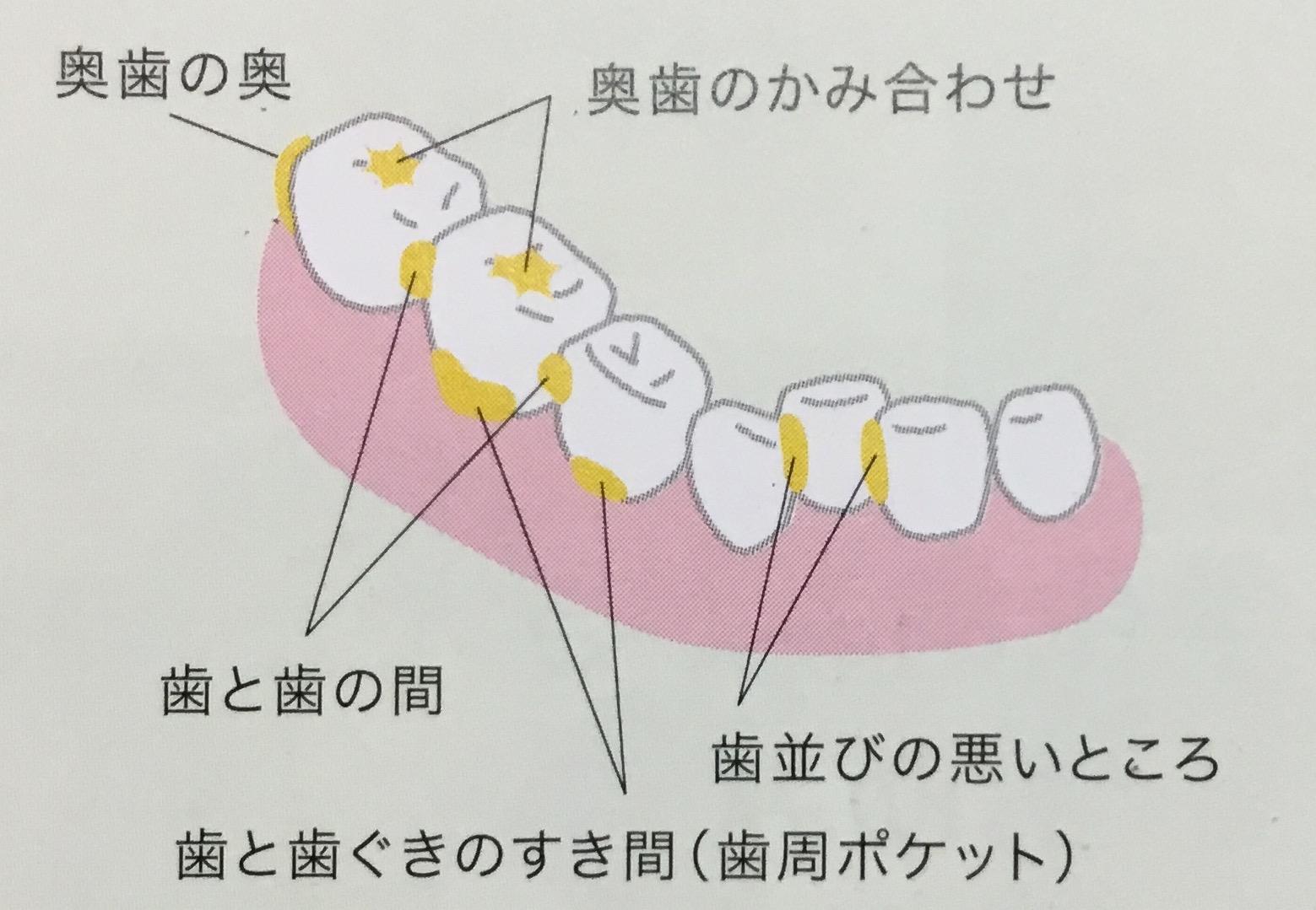 歯垢が残りやすいところを知ろう