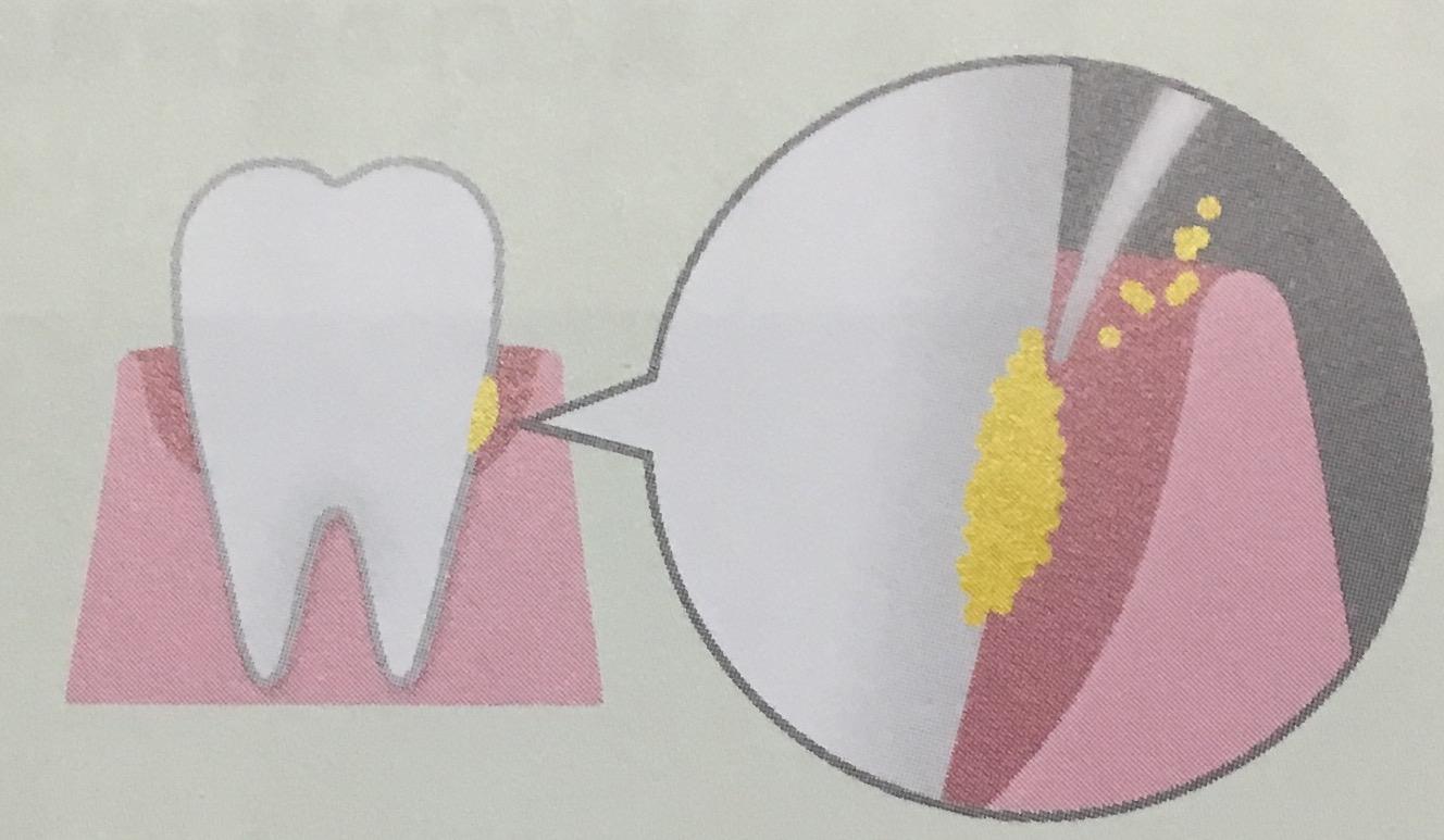 超極細毛で歯垢除去