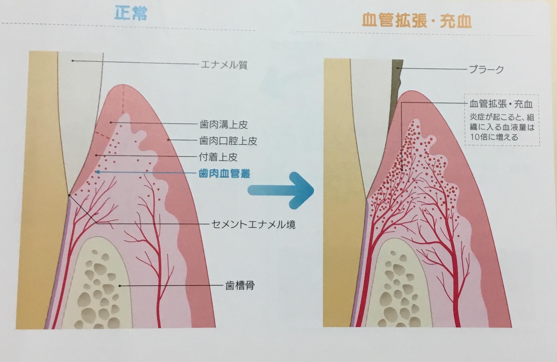 歯肉の発赤