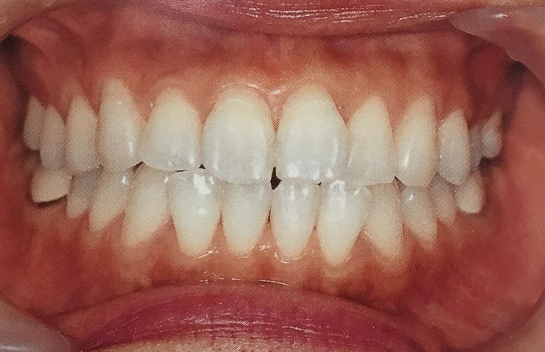 歯科医院でのケアとセルフケア