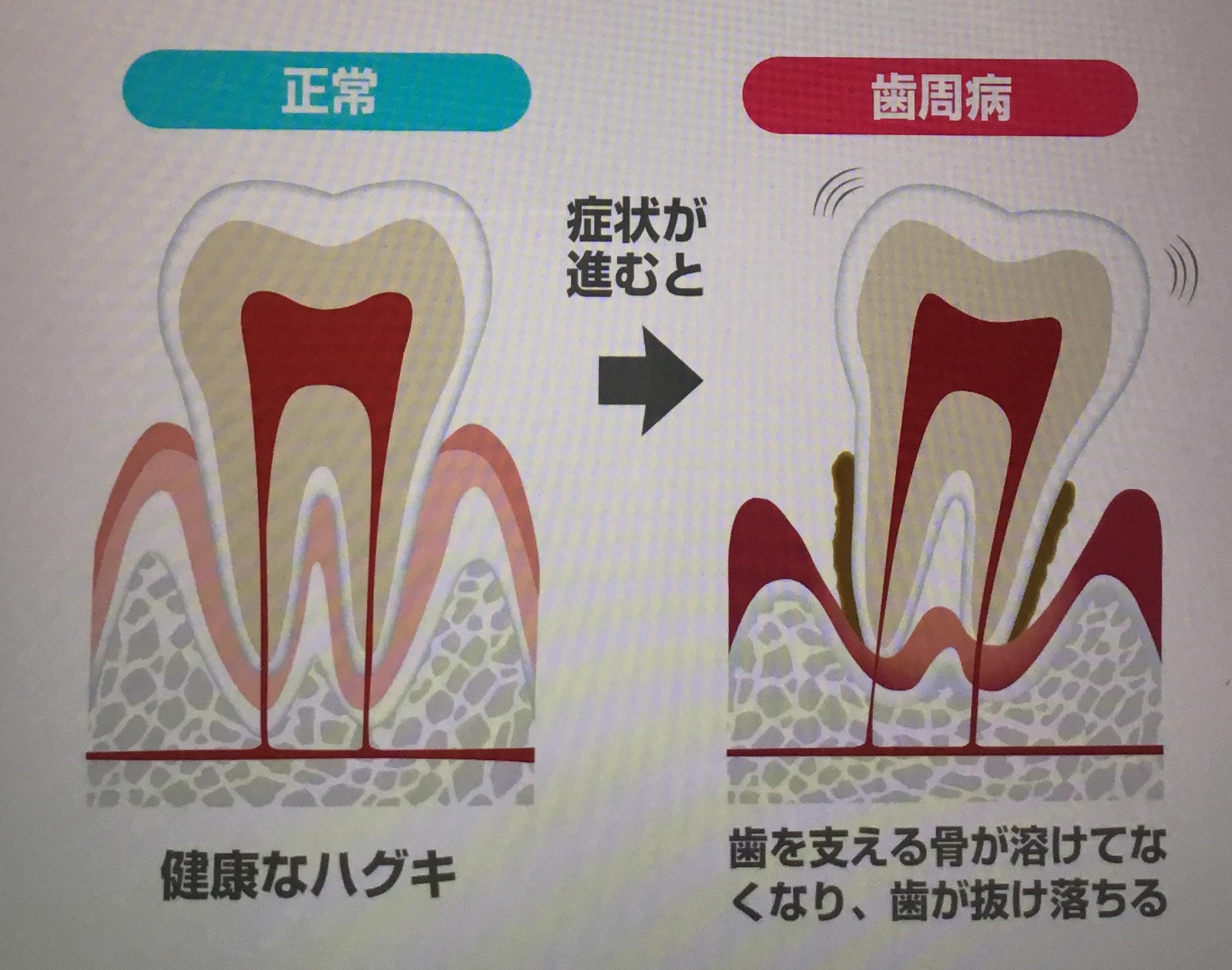 歯を失う前に