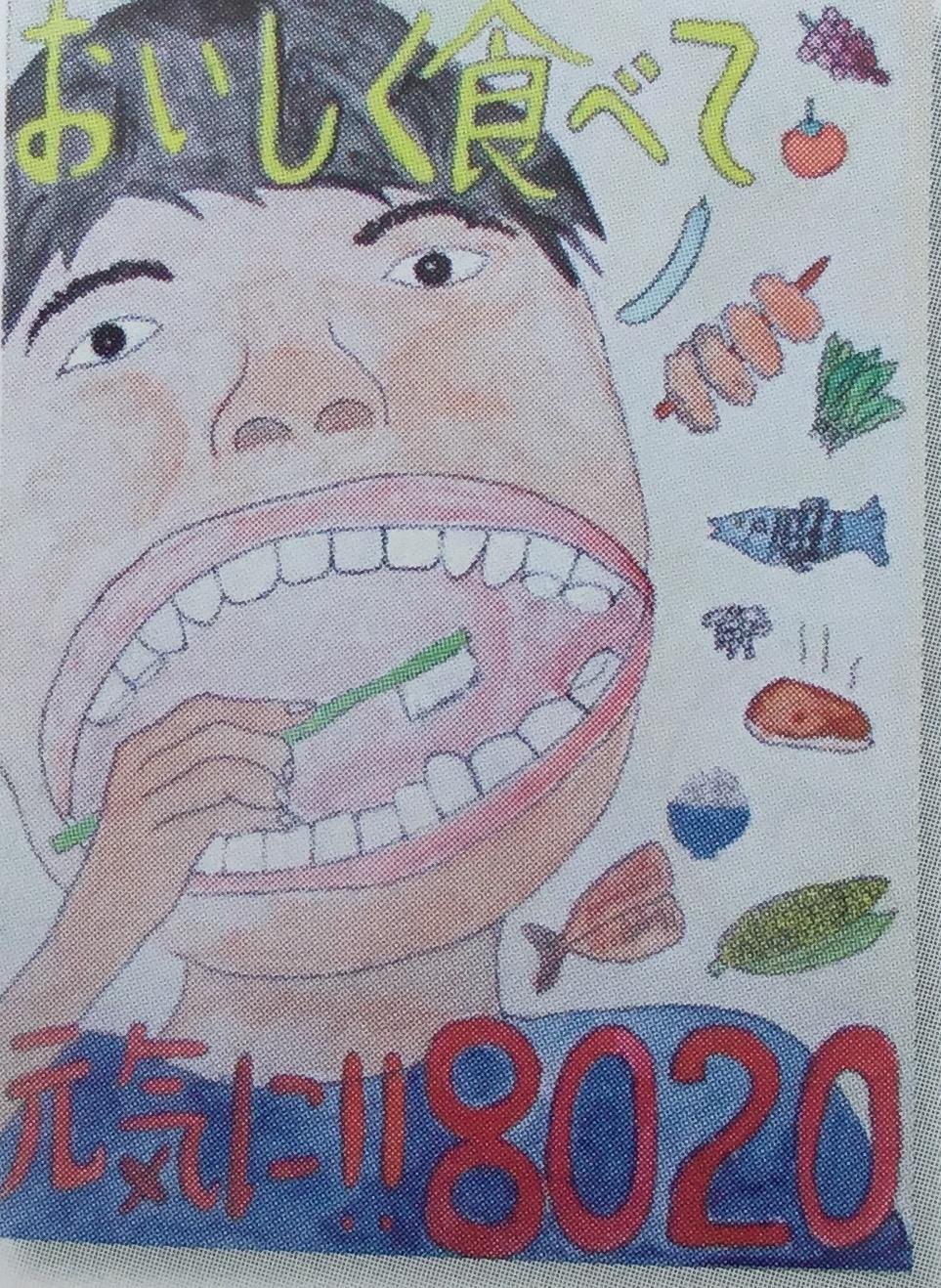 歯周炎  全身への悪影響  3