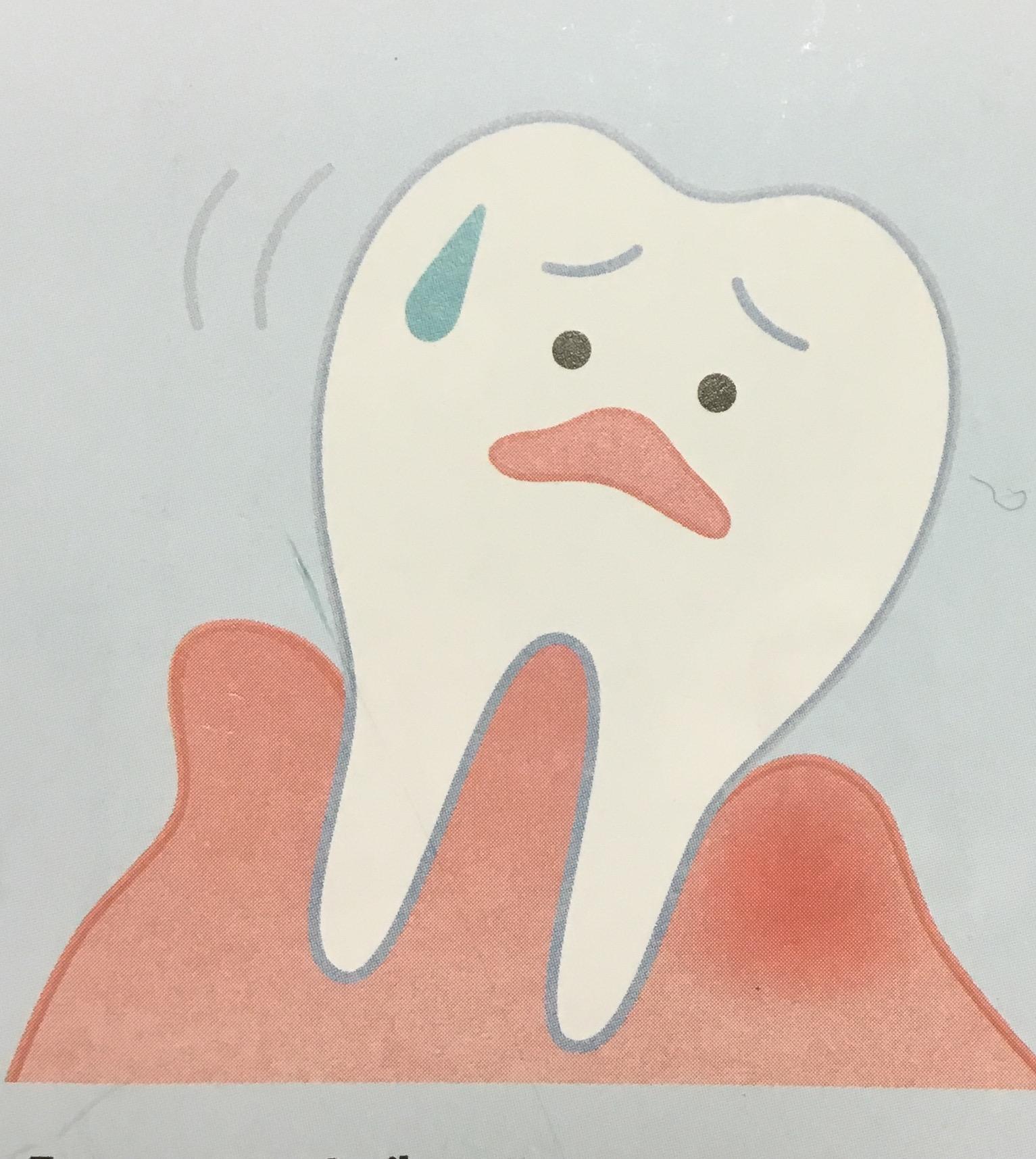 放置できない歯周病