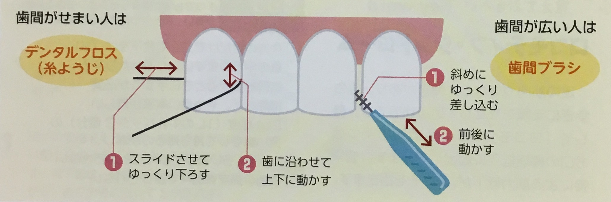 歯間部の根元