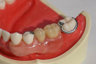 審美義歯の症例