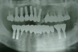 抜歯前のレントゲン写真