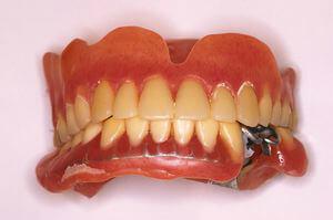 インプラントの上部構造上に下顎義歯を装着した口腔内写真