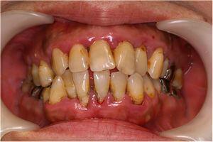 治療前(中程度・重度の歯周病)