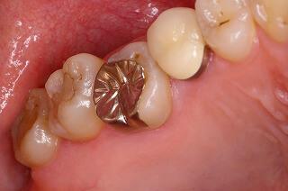 軽度歯周病の症例