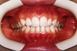 虫歯とはどんな病気?